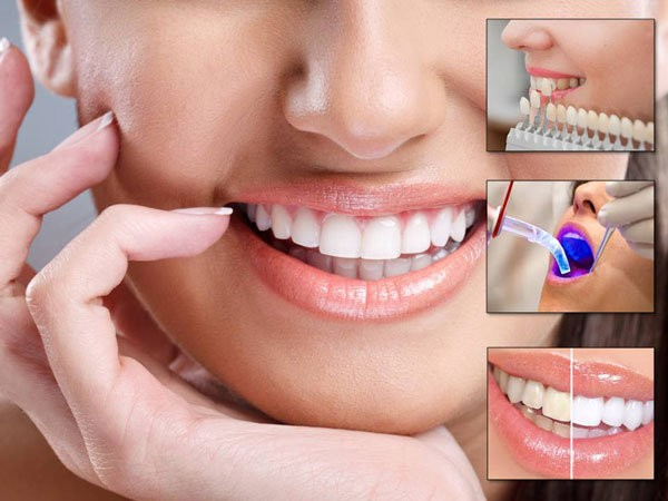 Image result for cosmetic dentistry services